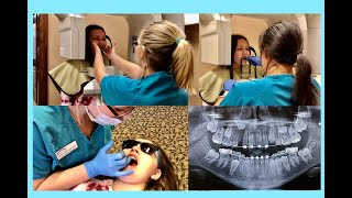 20th Braces Visit || Adding A Bracket,17 Mth Comparison/Panoramic & 3D X-Rays