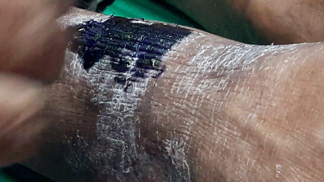 Lichenified Eczema Legs - YouTube