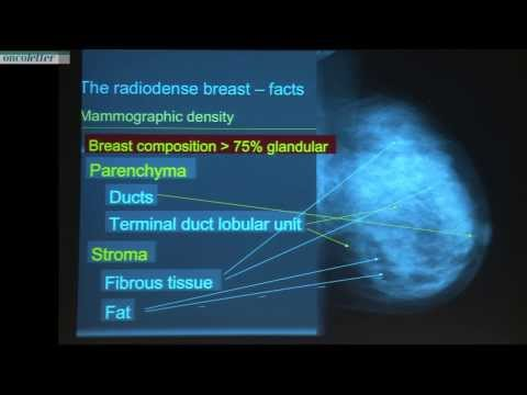Alexander Mundiger: The radiodense breast -- myths and facts