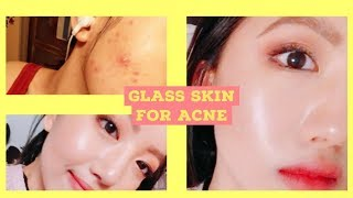Glass Skin For ACNE PRONE SKIN, we can do it too! | Makeup/Skincare Tutorial