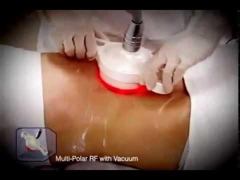 Non Surgical Lipolysis