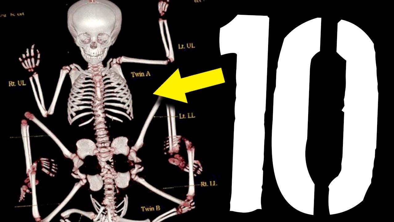 10 części ciała, o których nie miałeś pojęcia [TOPOWA DYCHA]