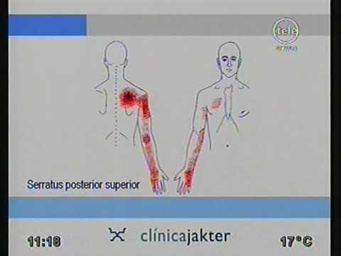 El cargador para los riñones a la osteocondrosis del vídeo