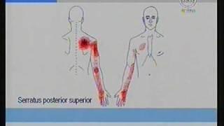 En brazo derecho daño nervioso de síntomas el
