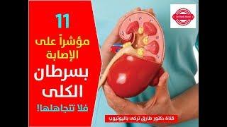 11 مؤشراً على الإصابة بسرطان الكلى فلا تتجاهلها!