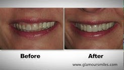 Cosmetic Dental Implant Restorations with Crowns and Veneers on a Polish Schaumburg, Il Patient