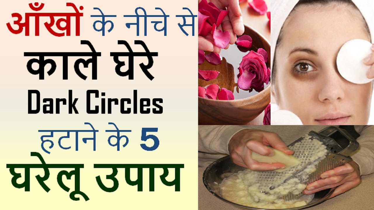 Dark Circles Under Eyes Removal At Home in Hindi | Top 5 ...