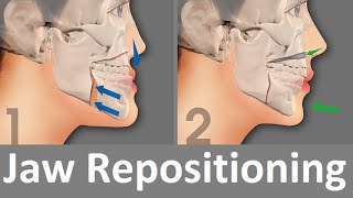 Repositioning of the Jaw by Prof John Mew