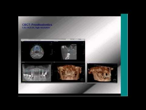 Webinar: Advantageous integration of 3D Imaging / CBCT in your daily work