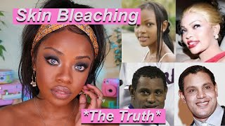 Why would anyone do this? Skin Bleaching & Beauty Standards *The TRUTH*