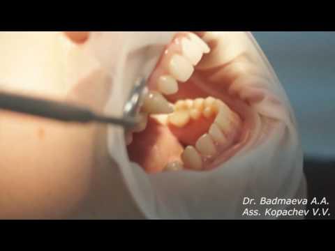 видео: Бодимодификация. Коментарии Врача Бадмаевой А.А. о наращивание клыков