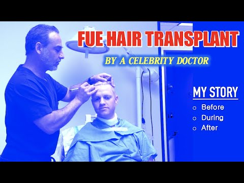 FUE Hair Transplant by Celebrity Doctor My Journey/Story (Before, During, After surgery) thumbnail