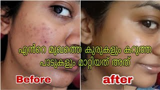 How to Remove Pimples & dark spots Naturally at home in 2 weeks||SimplyMyStyle Unni_ malayali beauty