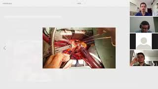 Anatomia cirúrgica da valva aórtica: conceitos práticos e armadilhas cirúrgicas (videoaula)