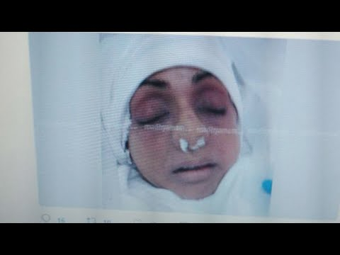 Sridevi: Last image of Bollywood actress after embalming surfaces on social media | Oneindia News