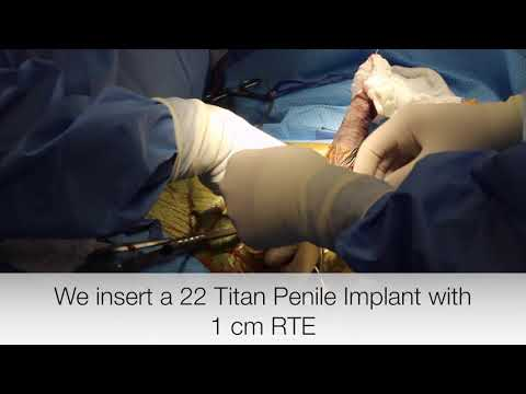 Penile Implant Using Minimally Invasive Scrotal Approach HD Atlanta Georgia