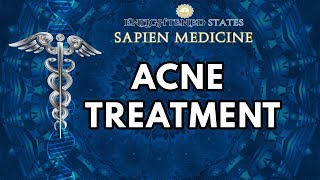 Repeat youtube video Acne Treatment