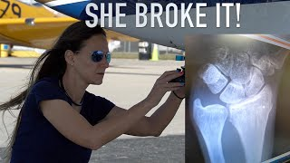 SHE BROKE IT! Flight To Spruce Creek Ended With A Broken Arm!