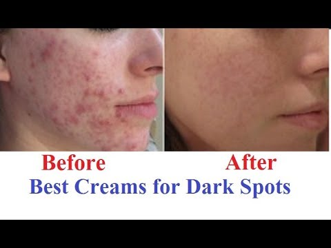 Best Creams For Dark Spots Removal On Face In India Youtube