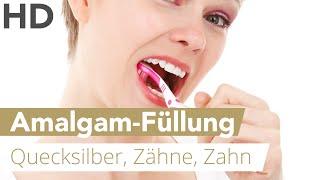 Amalgamfüllungen // Quecksilber Füllungen, Zähne, Zahn
