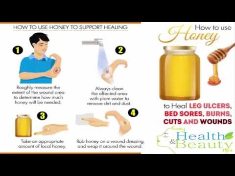 leg ulcer treatment honey