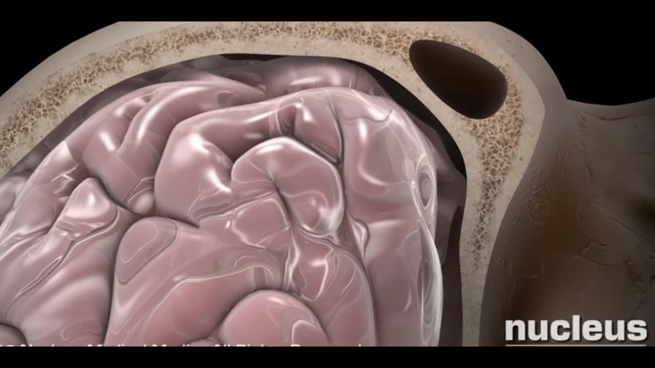 What is TBI in medical terms