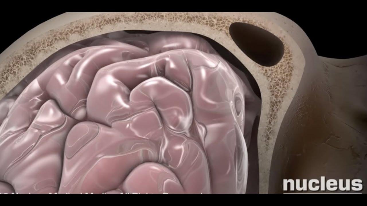 Concussion - YouTube