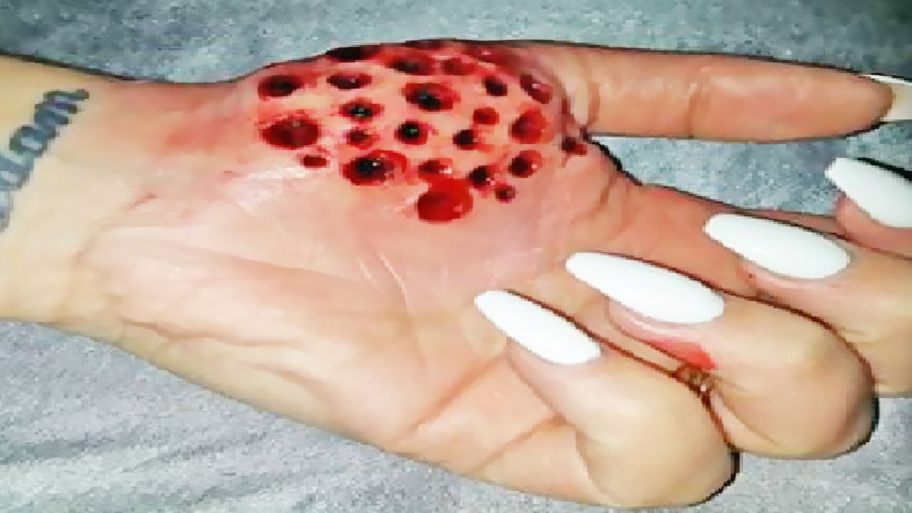 Real Trypophobia Cysts Youtube