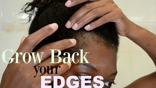 TRACTION ALOPECIA UPDATE - HOW TO GROW BACK YOUR EDGES WITH EMU OIL - HOW TO MASSAGE YOUR SCALP
