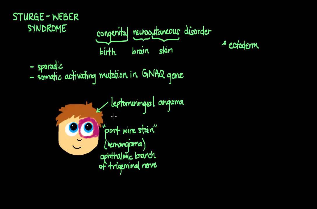 Sturge-Weber Syndrome - YouTube