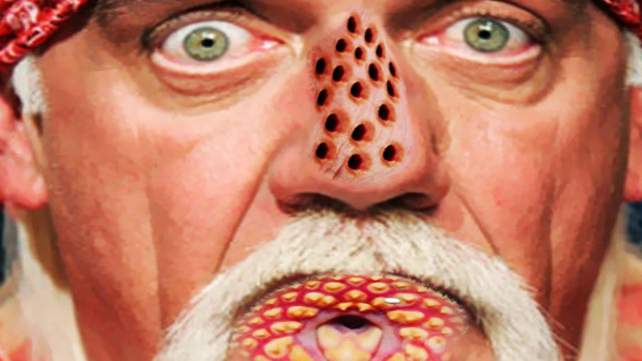 Hulk Hogan Has Trypophobia Trypomania Running Wild Youtube