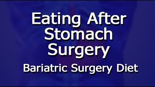 Eating After Stomach Surgery - Bariatric Surgery Diet