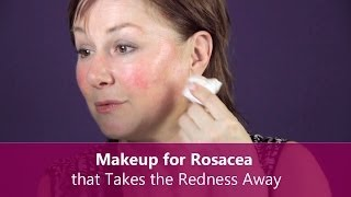 Makeup for Rosacea that Takes the Redness Away - Makeup for Older Women