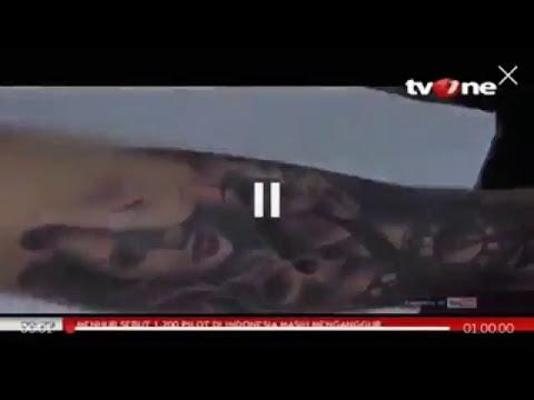 Tatto Removal Program #BeraniHijrahBaik