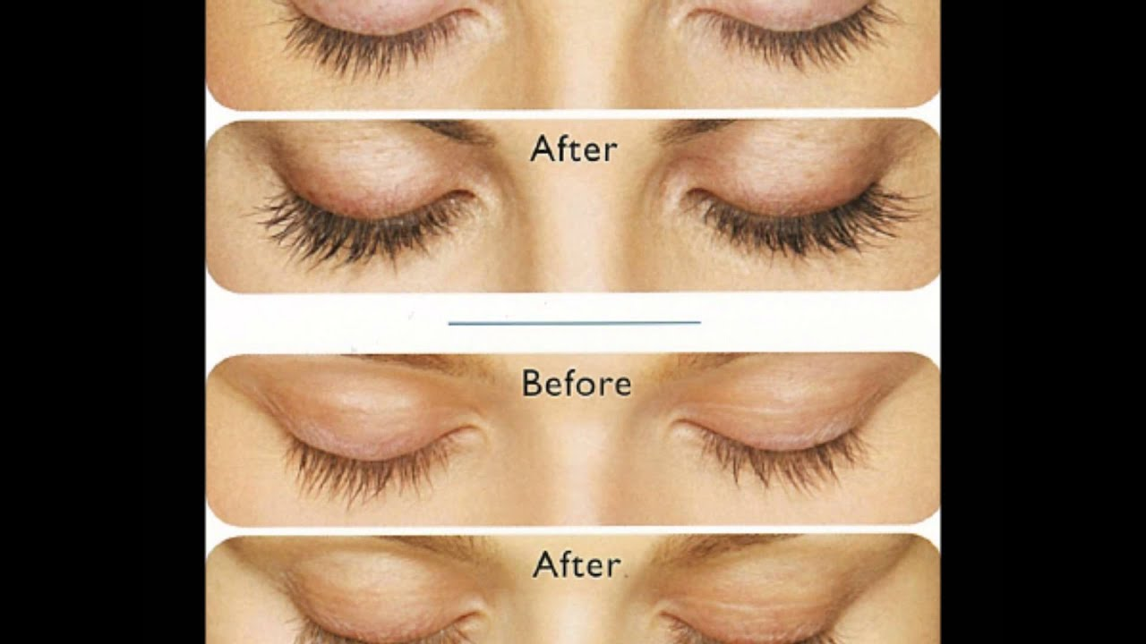 Latisse (Bimatoprost) Eyelash Growth: Before and After