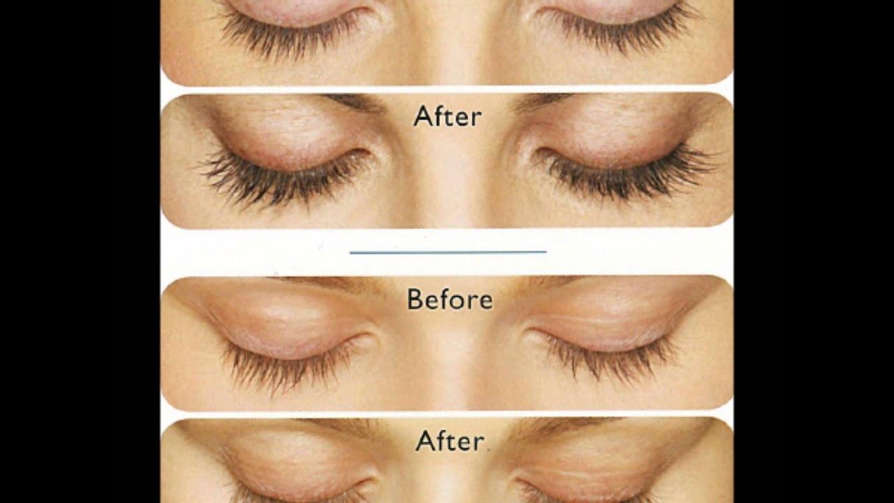 Latisse Bimatoprost Eyelash Growth Before And After Youtube