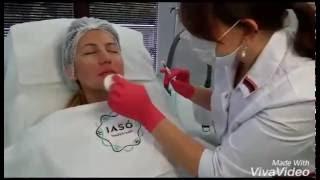 удаление носогубных морщин (контурная пластика) филлером Restylane
