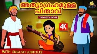 Malayalam Story for Children - അത്യാഗ്രഹമുള്ള പിതാവ് | The Greedy Father | Malayalam Fairy Tales