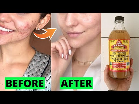how-to-use-apple-cider-vinegar-for-acne-scars