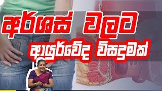 අර්ශස් වලට ආයුර්වේද විසදුමක් | Piyum Vila | 03-09-2020 | Siyatha TV Thumbnail
