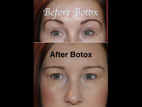 Botox Gone Wrong! - Before & After - My Story