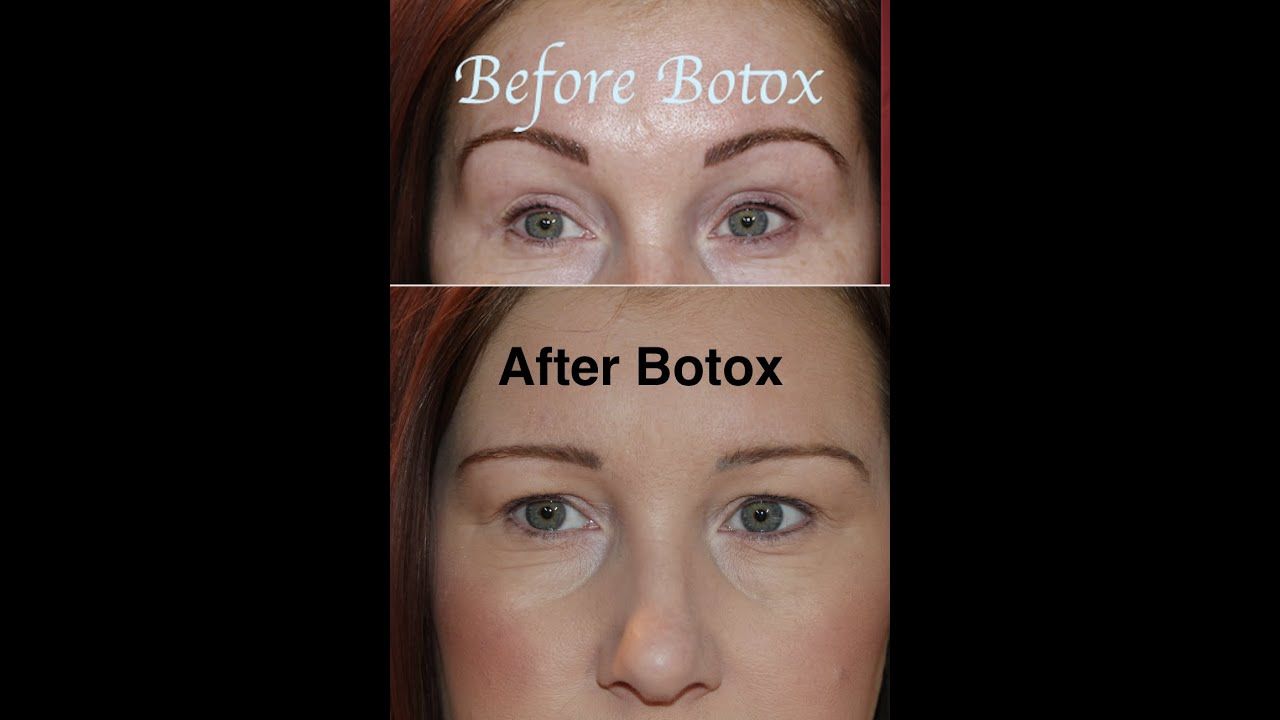Botox Gone Wrong Before Amp After My Story Youtube