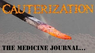 Does Cauterizing A Wound Really Work? YouTube Videos