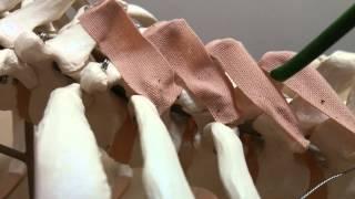 01 多裂筋の治療(むち打ち治療・筋肉治療の基本となる筋肉です)