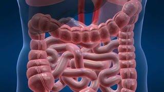 видео Дивертикулярная болезнь толстой кишки: симптомы и лечение