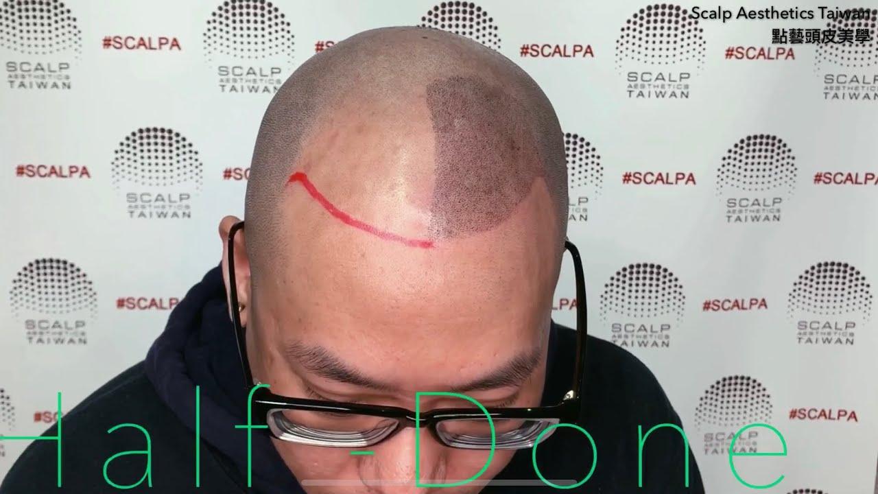 紋髮專家-點藝頭皮美學-頭皮紋身客戶實例 - YouTube