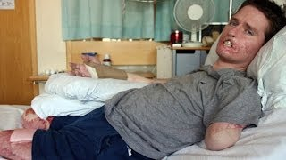 Father Loses Half His Face & 3 Limbs From Flesh Eating Bacteria