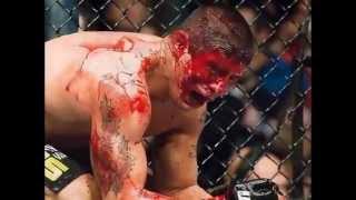Piores surras do UFC, Pride entre outros