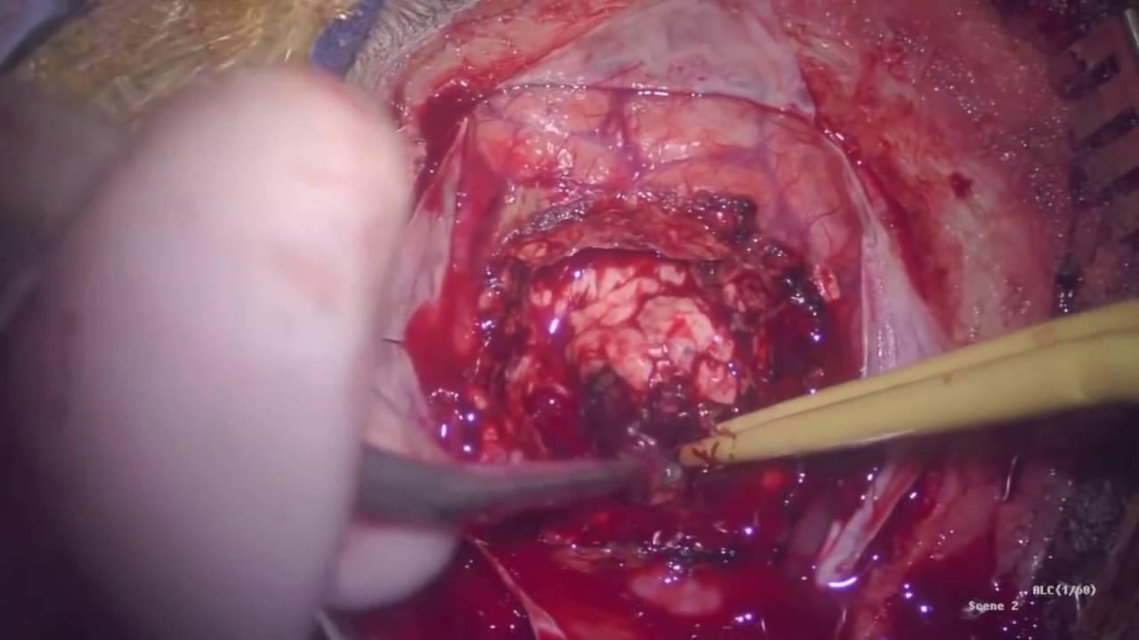 Beyin ameliyatı izle...(+18)