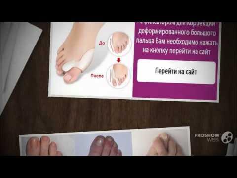 Правильное лечение отеков в районе стопы и возле пальцев